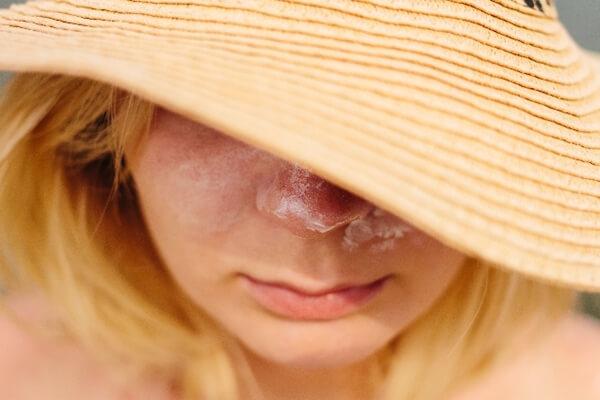 顔を日焼けした女性