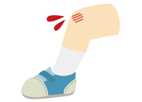 足の擦り傷
